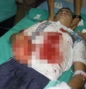 Bombayı polise atmak istedi, elinde patladı!